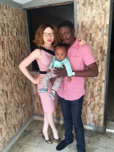 raising my albino child, parenting my albino child, parenting an albino child, parenting a child with albinism OAM Foundation, Onome Akinlolu Majaro Foundation,  Albino foundation in nigeria, #BeyondTtheComplexion
