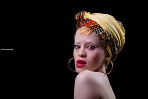 Anneline Mathiba, albino model, model with albinism, PWA, albino, albinism, #BeyondTheComplexion, OAM Foundation, Onome Akinlolu Majaro Foundation, albino foundation, albino foundation in Nigeria