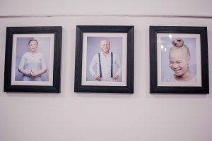 Angels Among Men, AAM, #BeyondTheComplexion, Albinism, Albino, Albino foundation, Albino foundation in Nigeria, OAM Foundation, Onome Akinlolu Majaro Foundation, Art exhibition, exhibition, art, Damilola Onafuwa